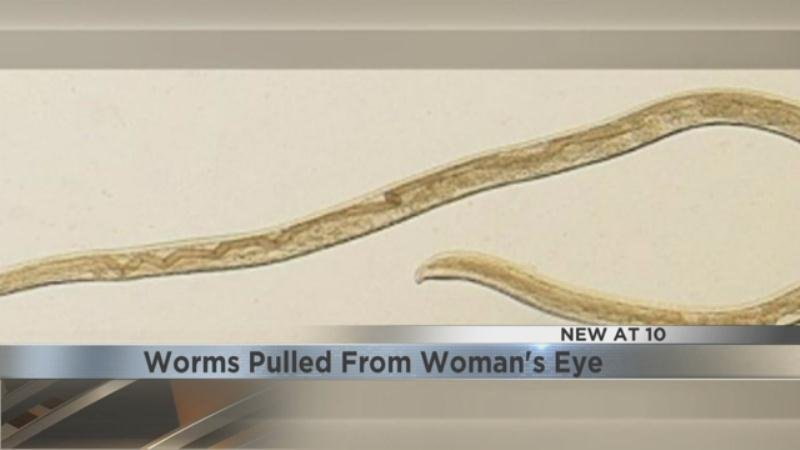 14 worms pulled from woman's eye after rare infection